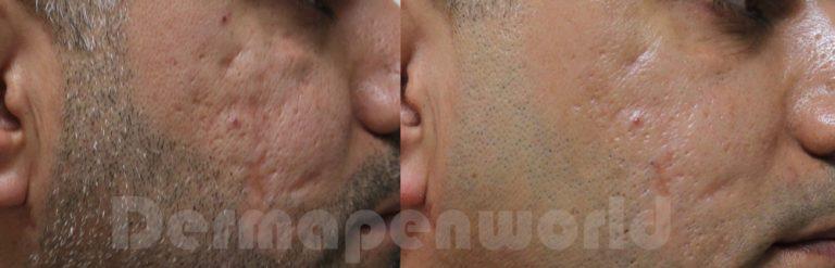 Dermapen_Acne-Scar